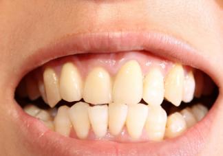 牙缝清洁真的有必要吗 牙缝清洁不到位有什么危害
