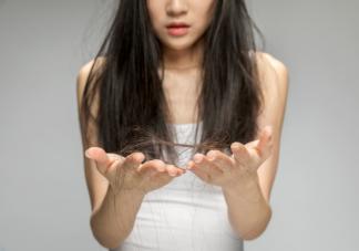 关于脱发的10条真相科普 当代年轻人为什么严重脱发