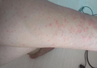 长湿疹的部位还能碰水吗 长了湿疹后饮食上要注意什么