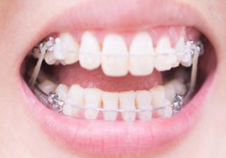 为什么戴牙套很久还是没变化 戴牙套需不需要忌口