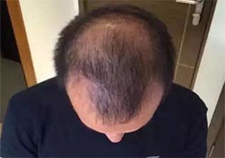 为什么年纪轻轻就脱发 怎样防止脱发