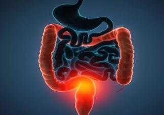 关于肠癌哪些知识要知道 哪些人需要进行肠癌的筛查